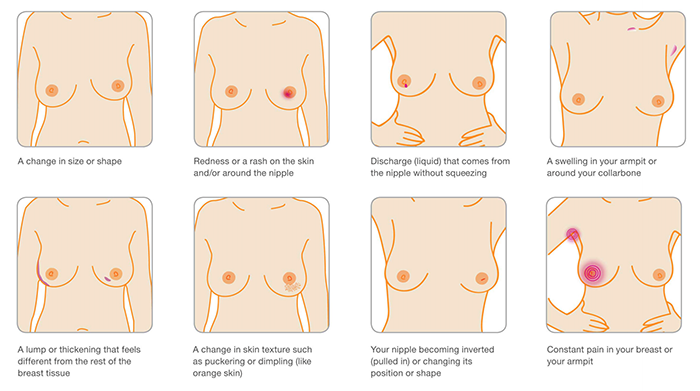 Costochondritis symptoms breast cancer